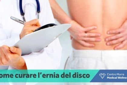 Ernia al disco - Napoli