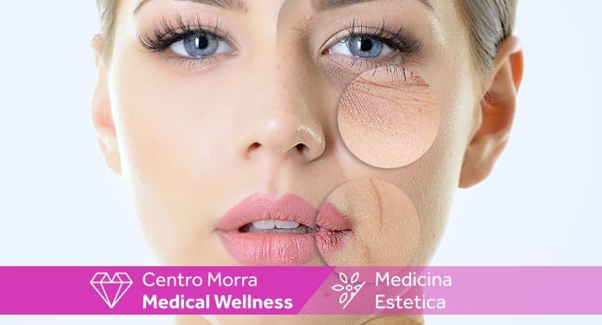 prp Viso: trattamento medicina estetica Napoli centro Morra