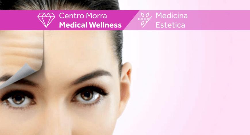 botulino medicina estetica