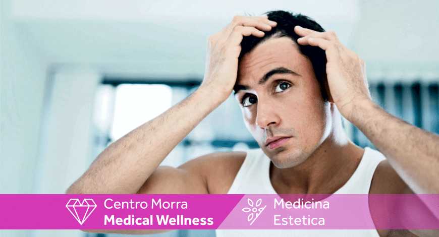 PRP Capelli Napoli - Centro Morra Medical Wellness bf7eb8c38ae2