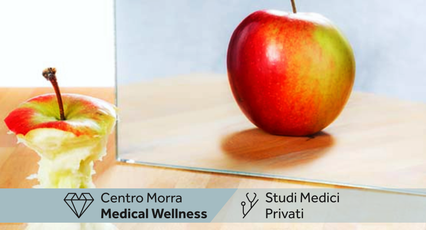 Cura Bulimia Napoli | Dott.ssa Vozzella Carmela | Centro Morra