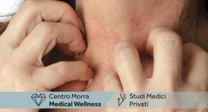 Dermatite Allergica Cura Napoli | Dott.ssa Maddalena Napolitano | Centro Morra