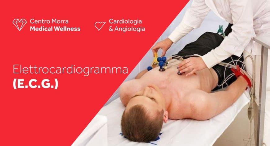 Elettrocardiogramma Napoli - diagnosticare malattie cardiache