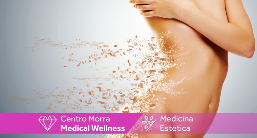 Cellulite:cura e trattamenti - Centro Morra Napoli