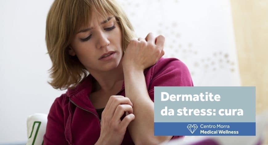 Dermatite da stress - cura al Centro Morra di Napoli