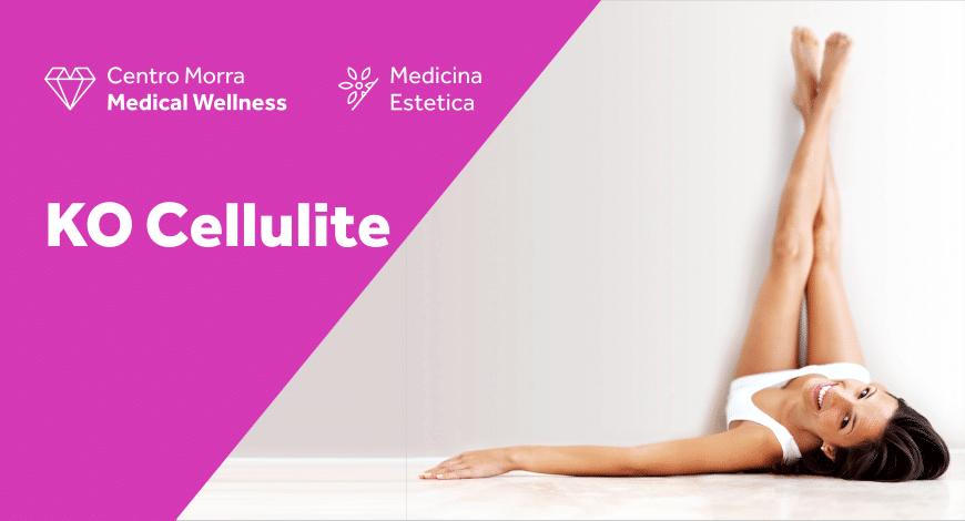 KO Cellulite: il trattamento anticellulite a Pomigliano- Centro Morra