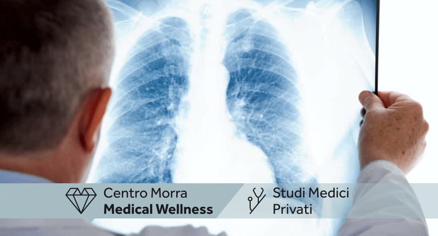 Pneumologo Brusciano | Dott.ssa Del Giudice Ginevra | Centro Morra