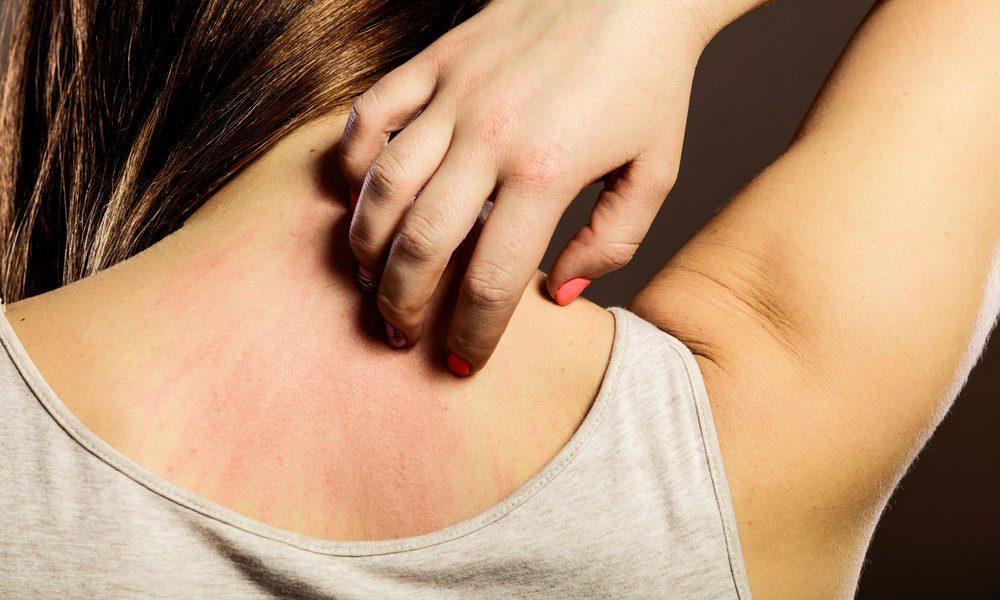 Dermatite Allergica Cura Napoli