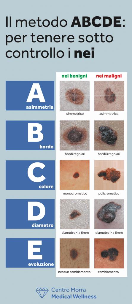 Il metodo ABCDE: per tenere sotto controllo i nei