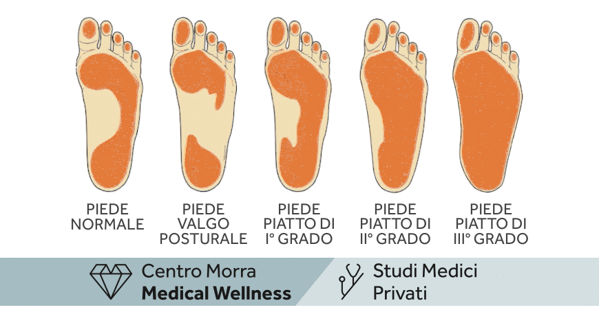 Podologia pediatrica Napoli | Dott.ssa Maria Rosaria Ferrara | Centro Morra