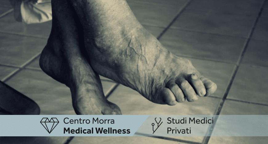 Podologia nell'anziano Napoli | Dott.ssa Maria Rosaria Ferrara | Centro Morra