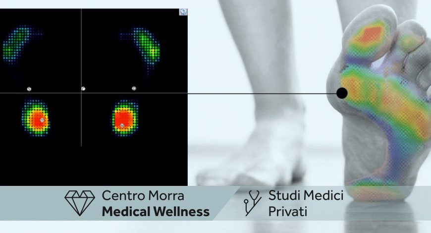 Baropodometria e stabilometria Napoli | Dott. Riccardo Galazzo | Centro Morra