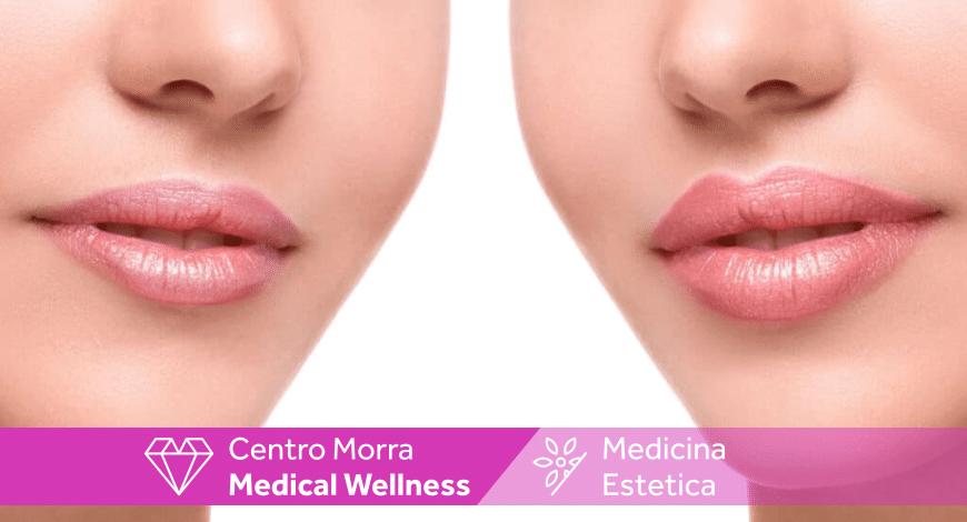 Aumento e miglioramento labbra | Pomigliano| Dott. Salerno | Centro Morra
