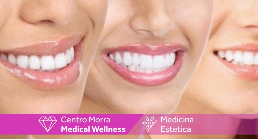 Gummy smile o sorriso gengivale Napoli| Dott. Andrea Salerno | Centro Morra