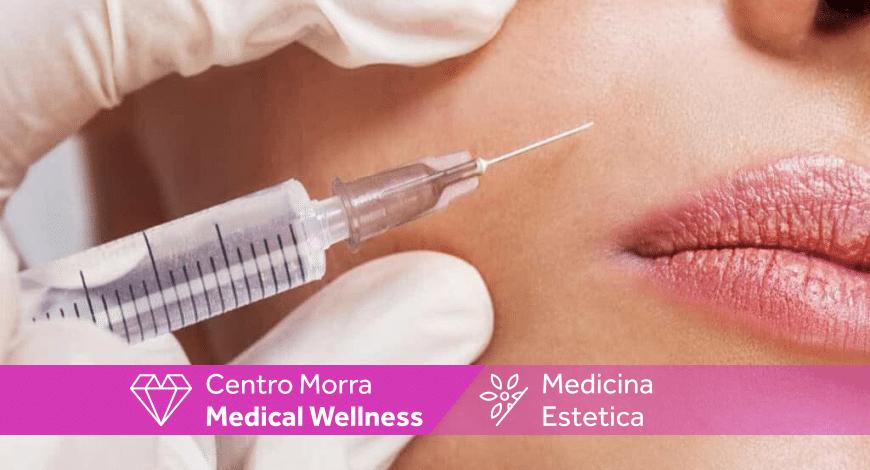 Rughe naso labiali |Pomigliano | Napoli | Centro Morra | Dott. Andrea Salerno |