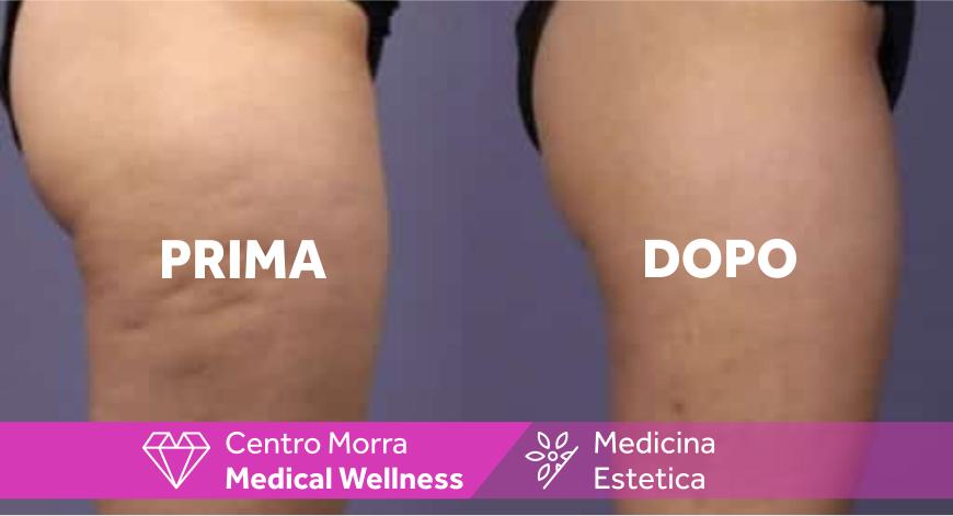Mesoterapia Nola | Dott.ssa Napolitano | Centro Morra
